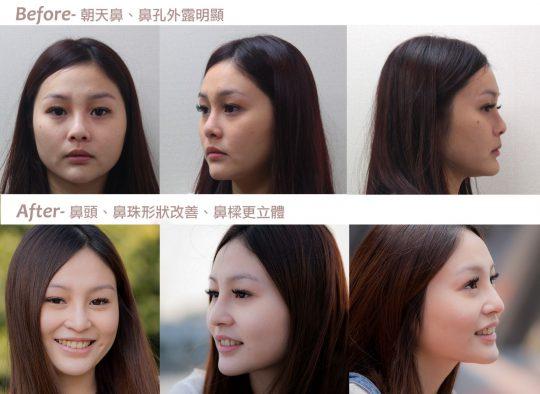 [新闻] 韩式隆鼻改善朝天鼻 雕塑自然系美鼻_医学美容