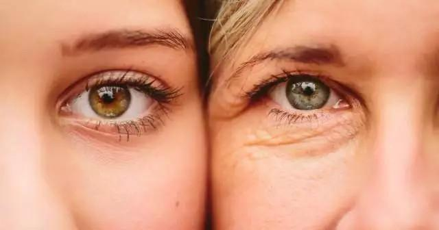 割過「雙眼皮」的女生,幾年後會有什麼變化?美容師說出了實情!
